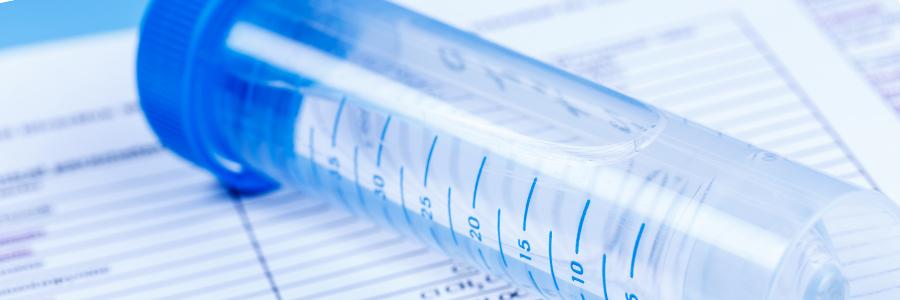 análise de fósforo água